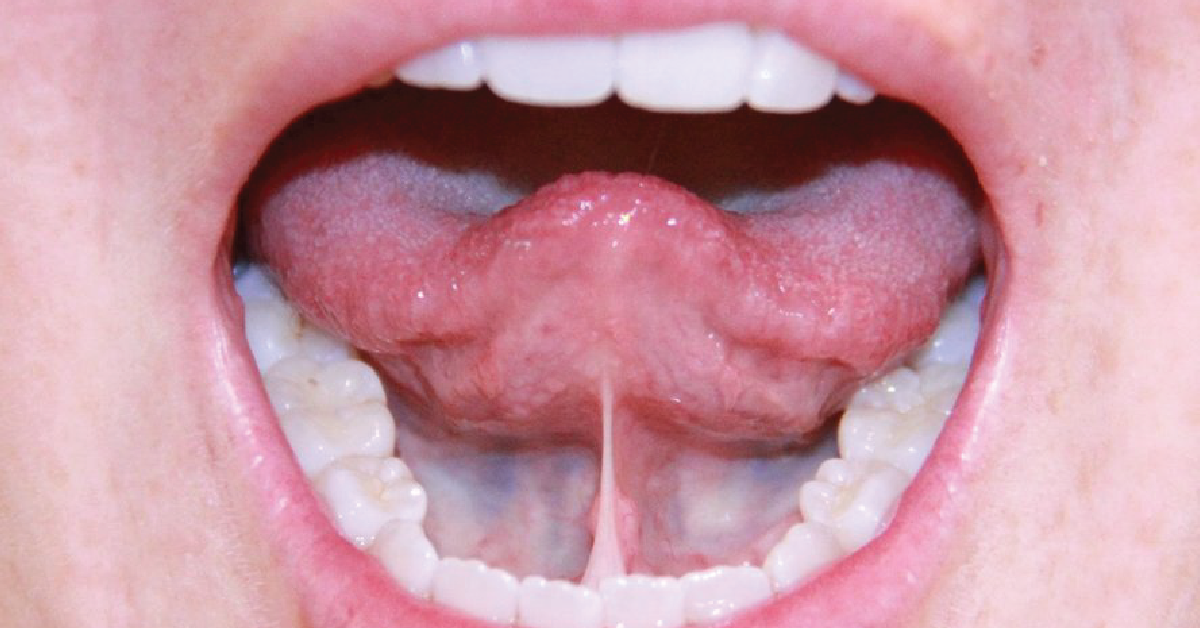 WHAT IS A TONGUE OR LIP TIE?
