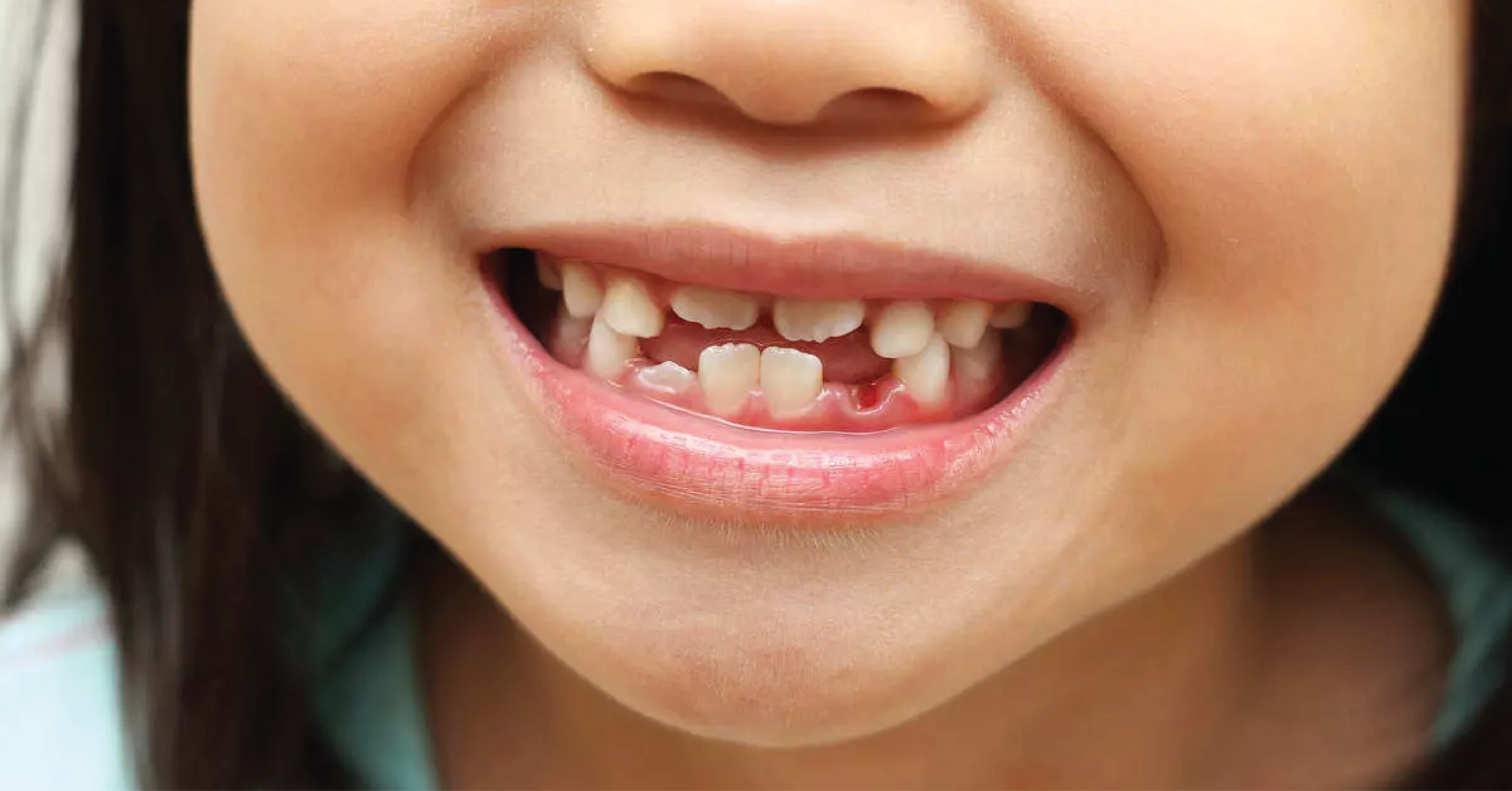 TEETH FACTS EXPLAINED BY PEDIATRIC DENTISTS