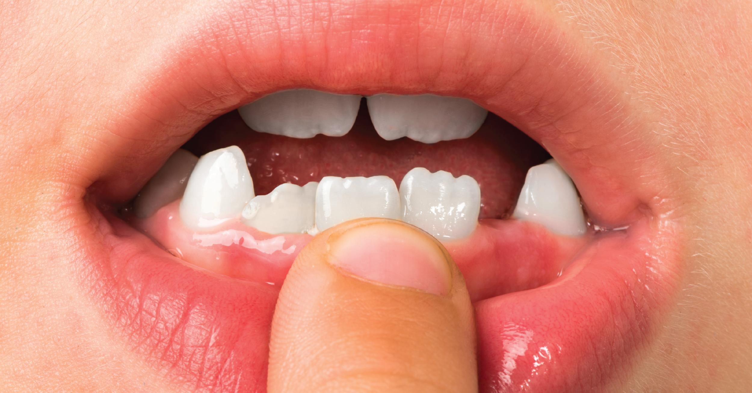 Protect your Teeth Enamel