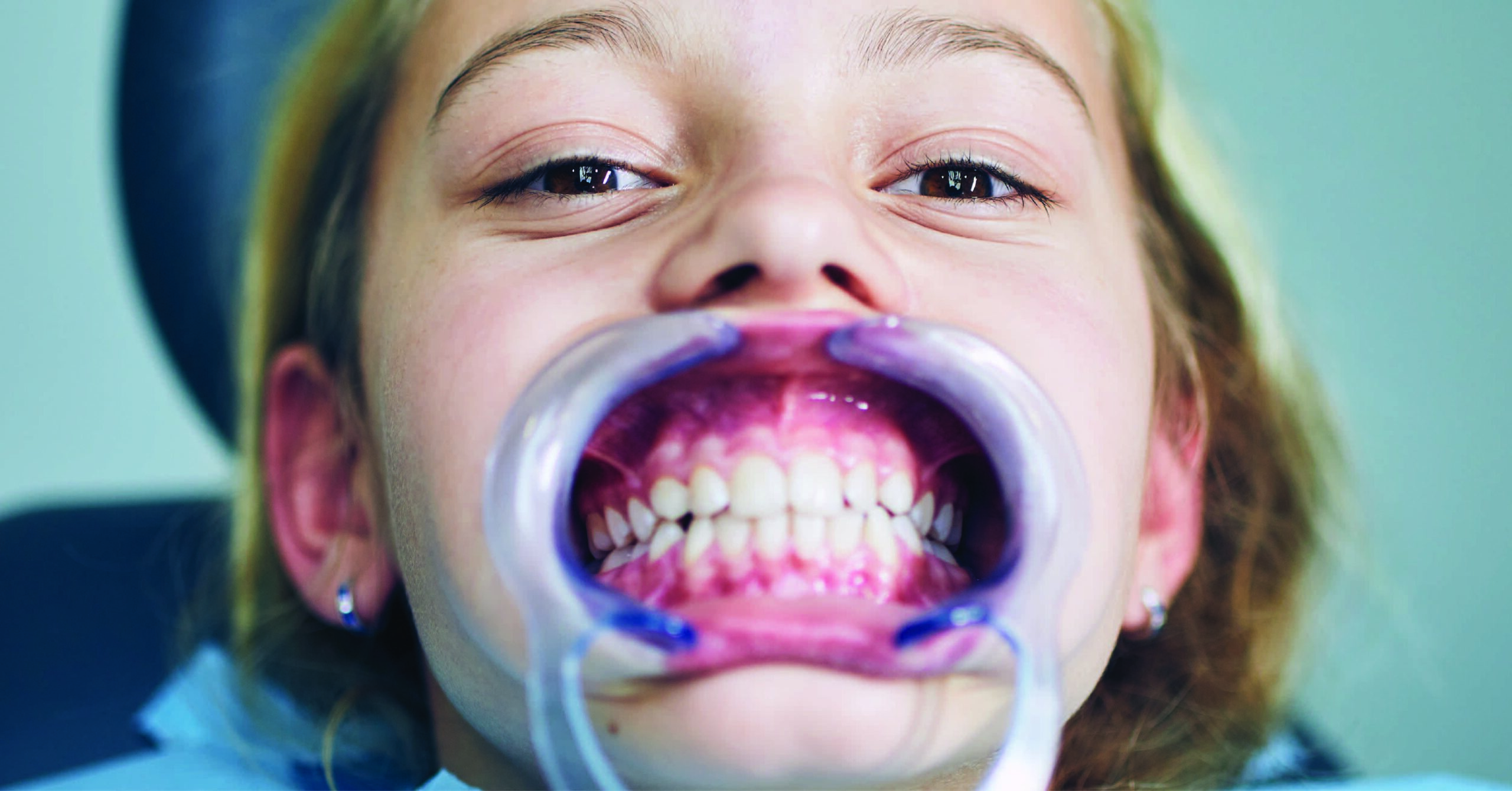 TIPS TO PREPARE FOR YOUR CHILD'S DENTAL APPOINTMENT
