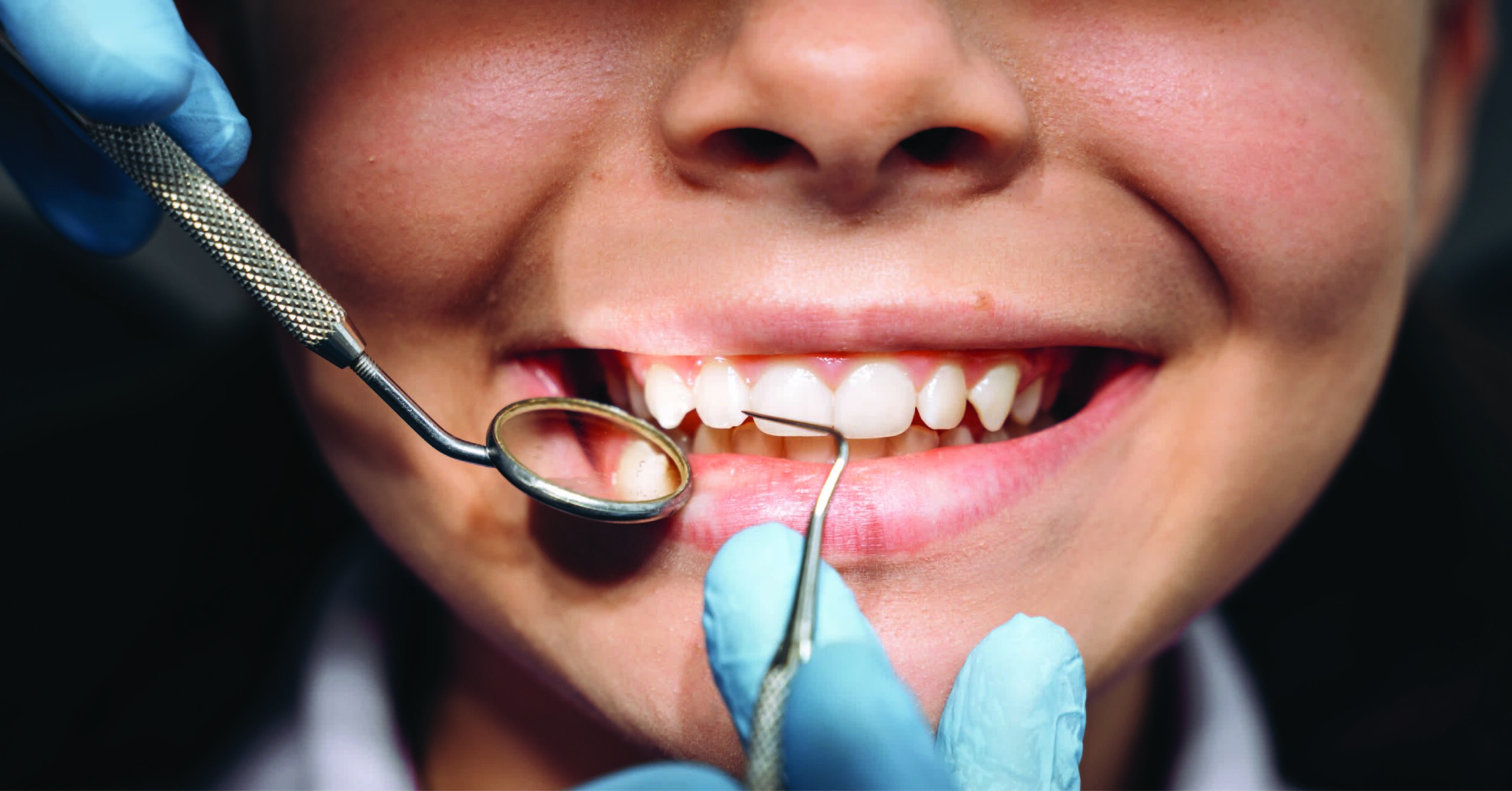 ARE TEETH CLEANINGS NECESSARY?