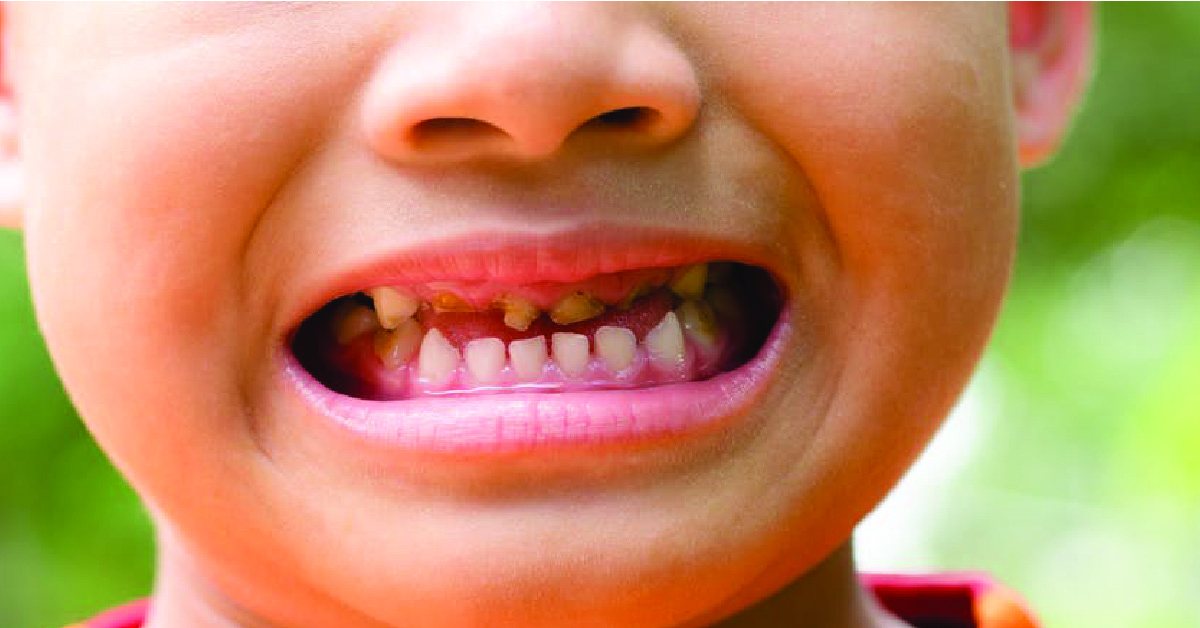 TOOTH DECAY CAN BE PREVENTED